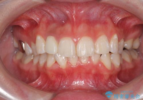 オフィスホワイトニングで歯の色を白くして清潔感アップ!!の症例 治療後