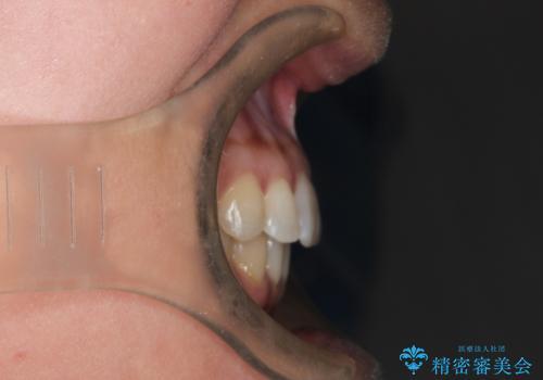 前歯のがたつきと隙間の矯正 インビザラインにての治療後