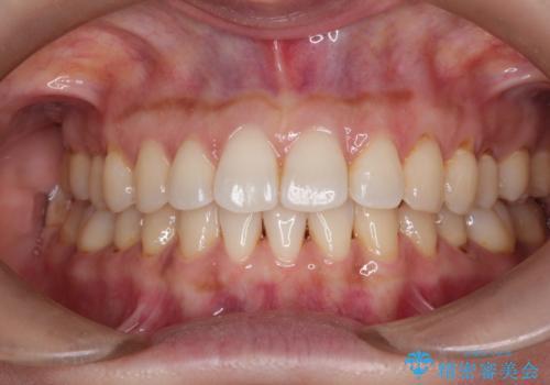 前歯のがたつきと隙間の矯正 インビザラインにての症例 治療後