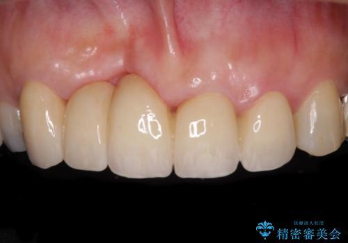汚い仮歯で困っている 前歯のオールセラミックブリッジの治療後