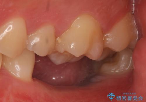 インプラント 失ってしまった奥歯の再建の治療前
