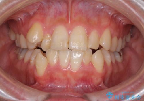 上下の八重歯を治したい インビザラインと補助装置を用いた抜歯治療の症例 治療前