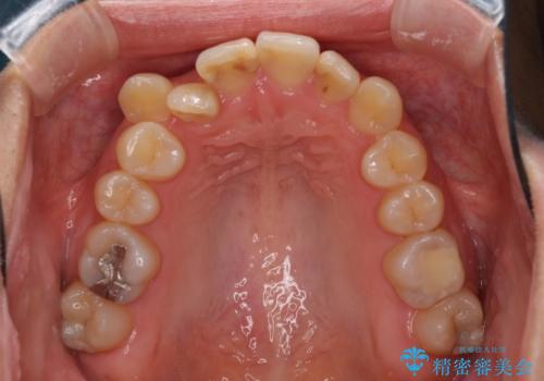 上下の八重歯を治したい インビザラインと補助装置を用いた抜歯治療の治療前