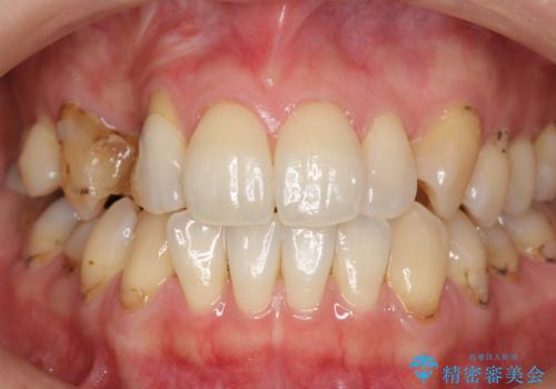 前歯の虫歯 とりあえずつけていた歯がとれたの治療前