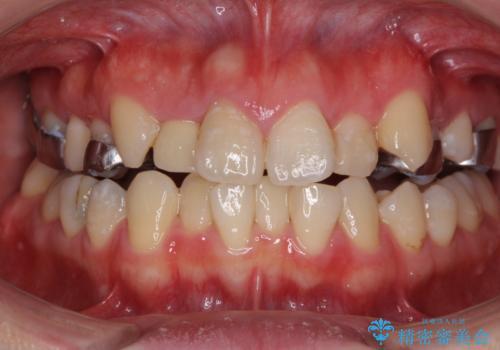 狭い上顎骨を拡大 インビザラインによる非抜歯矯正の治療中