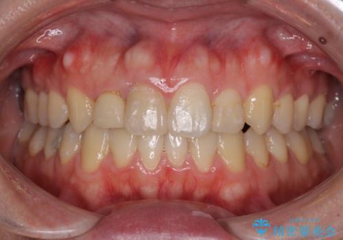狭い上顎骨を拡大 インビザラインによる非抜歯矯正の症例 治療後