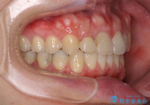 狭い上顎骨を拡大 インビザラインによる非抜歯矯正の治療後