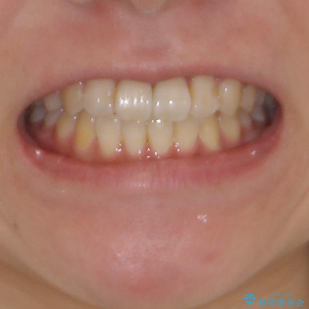 気になる前歯のデコボコ インビザラインによる矯正治療の治療後(顔貌)