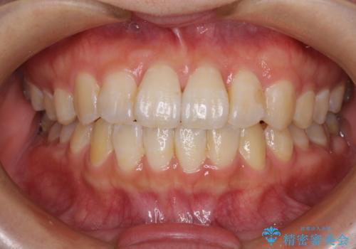 気になる前歯のデコボコ インビザラインによる矯正治療の症例 治療後