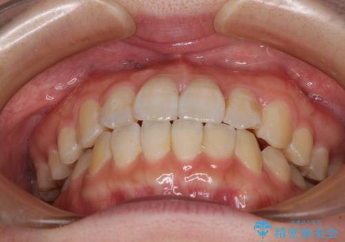 気になる前歯のデコボコ インビザラインによる矯正治療の治療後