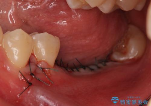 インプラント 失ってしまった奥歯の再建の治療後