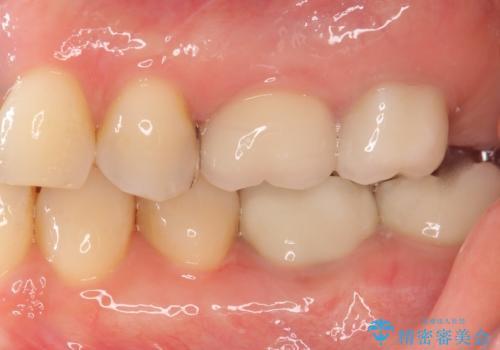 銀歯がしみる PGA(ゴールド)インレーへ 40代女性の治療前