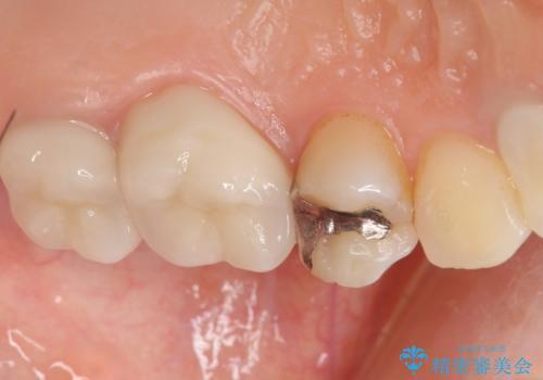 銀歯がしみる PGA(ゴールド)インレーへ 40代女性の症例 治療前