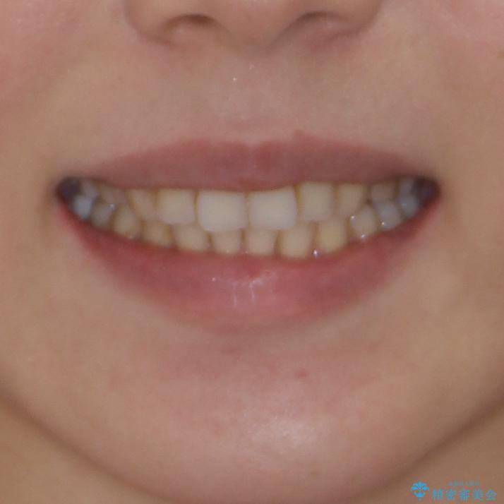 総合歯科治療 矯正治療と失活歯のセラミック補綴治療の治療後(顔貌)