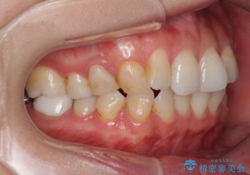 総合歯科治療 矯正治療と失活歯のセラミック補綴治療の治療前