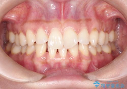 前歯のがたつきと隙間の矯正 インビザラインにての症例 治療前