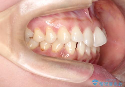 前歯のがたつきと隙間の矯正 インビザラインにての治療前