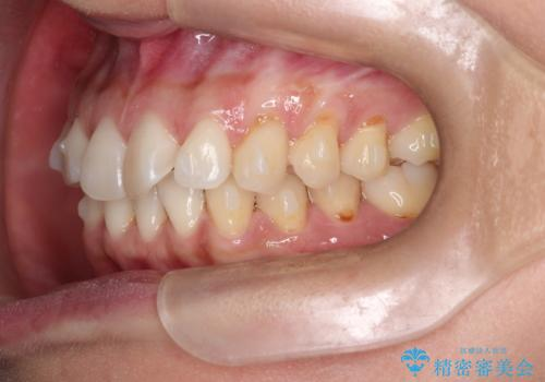 前歯のがたつきと隙間の矯正 インビザラインにての治療中