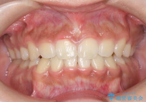 矯正治療後、ホワイトニングで歯の色を白くしてさらに口元を美しく!の治療前
