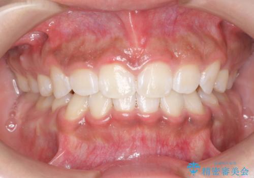 矯正治療後、ホワイトニングで歯の色を白くしてさらに口元を美しく!の治療後