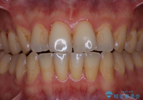 歯のお掃除 PMTCの治療前