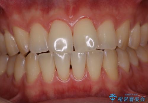歯のお掃除 PMTCの治療後