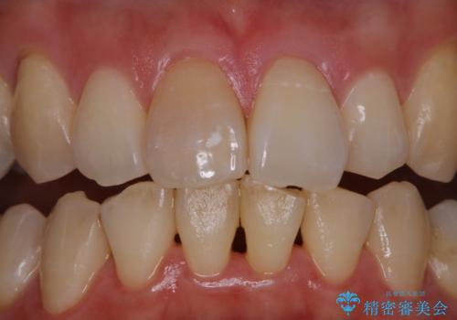 歯科医院で専門的なクリーニング PMTCの治療前