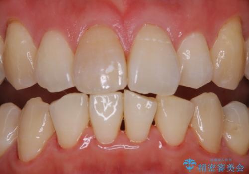 歯科医院で専門的なクリーニング PMTCの治療後