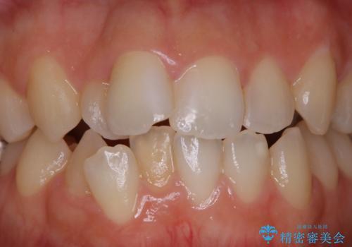 歯科矯正治療前のクリーニング PMTCの治療前