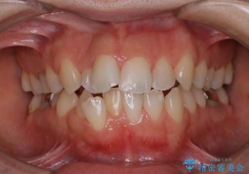 歯科矯正治療前のクリーニング PMTCの治療後