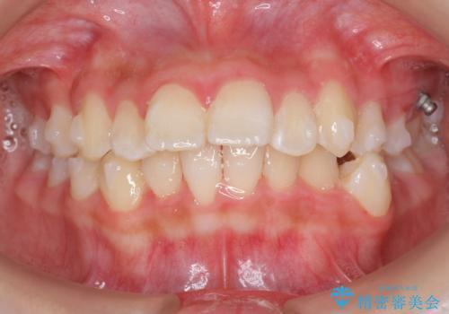 中学生のマウスピース矯正 歯を抜かずにキレイにの治療中