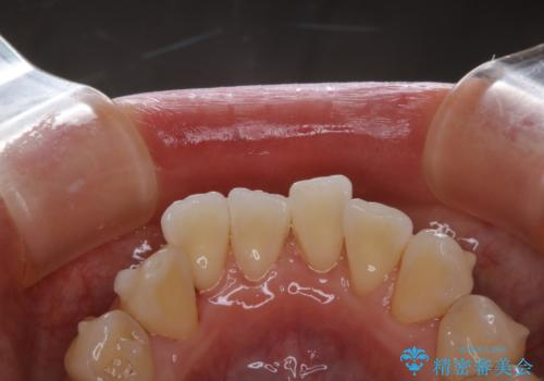 Orthodontics中にPMTCで綺麗にクリーニングの治療後