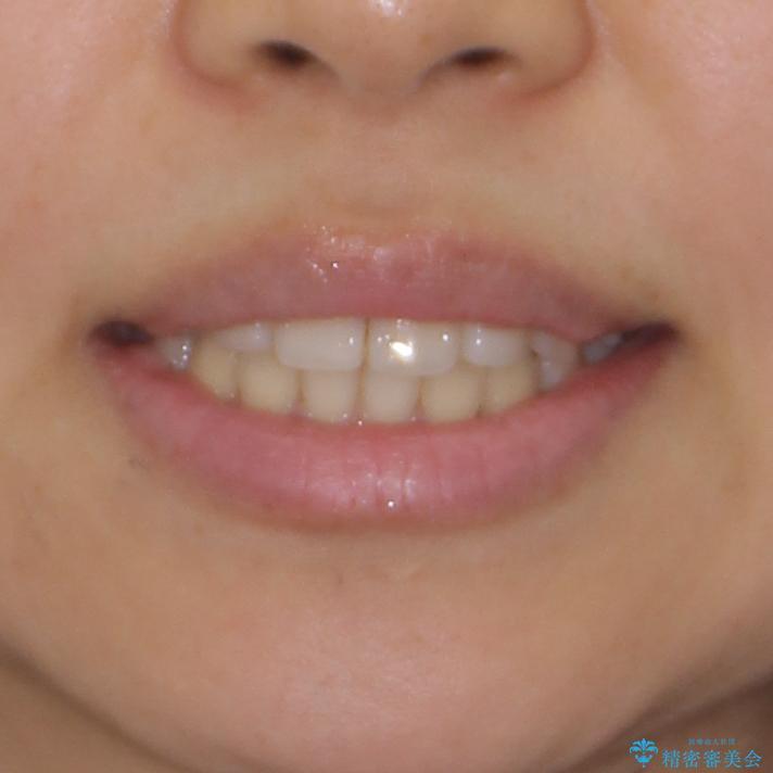 前歯の突出感とデコボコ インビザラインで改善の治療後(顔貌)