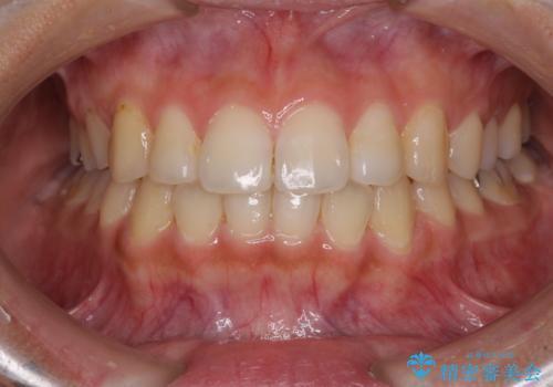 前歯の突出感とデコボコ インビザラインで改善の症例 治療後