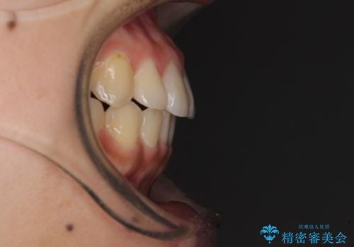 前歯の突出感とデコボコ インビザラインで改善の治療後