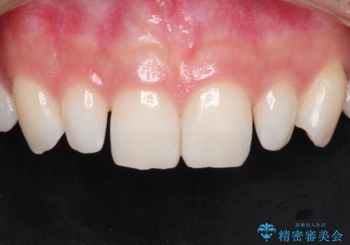 【矮小歯】ダイレクトボンディングによる歯冠修復の症例 治療前
