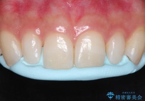 【矮小歯】ダイレクトボンディングによる歯冠修復の治療中
