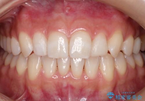 【矮小歯】ダイレクトボンディングによる歯冠修復の治療後