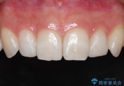 【矮小歯】ダイレクトボンディングによる歯冠修復の症例 治療後