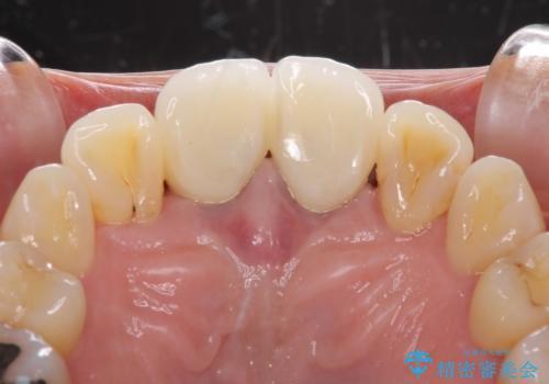 部分矯正とセラミック 前歯の審美治療の治療後