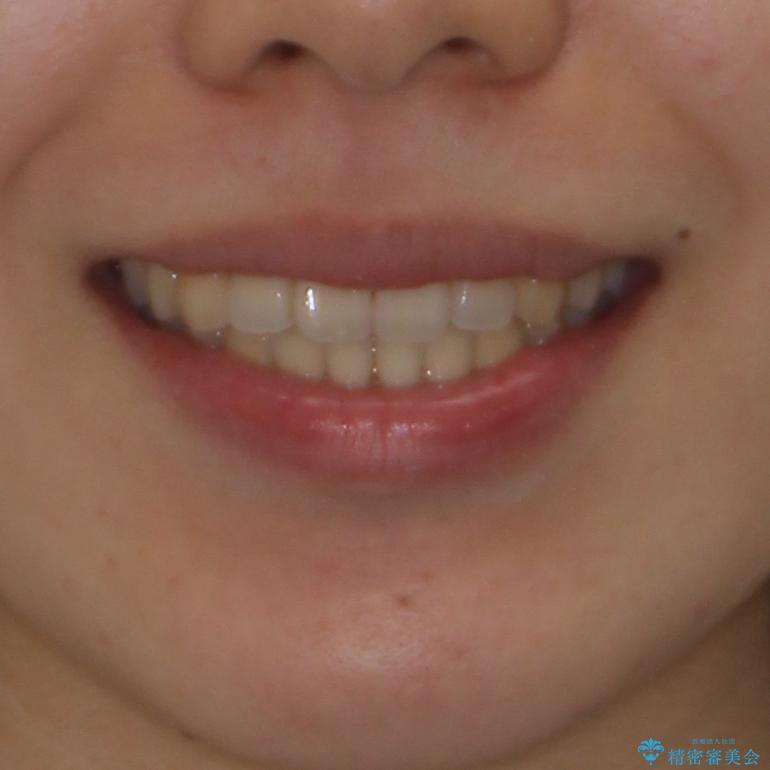 オープンバイトでかみにくい インビザラインによる矯正治療の治療後(顔貌)