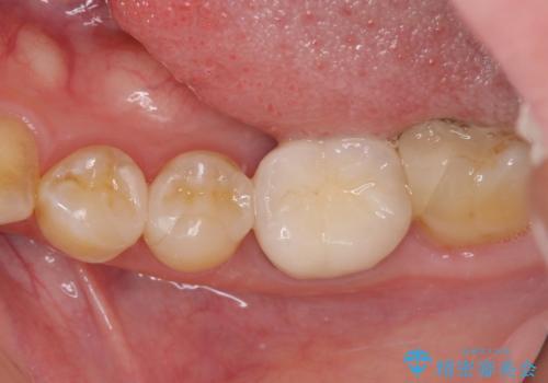 冷たいものがしみる セラミックインレーによるむし歯治療の治療後
