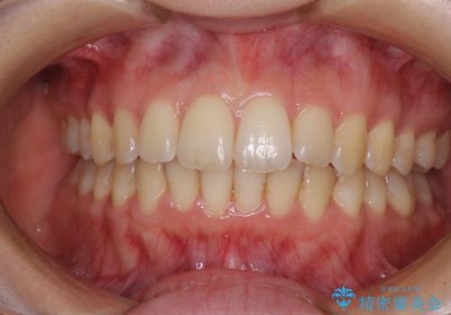 前歯のデコボコを解消 インビザラインによる矯正治療の症例 治療後