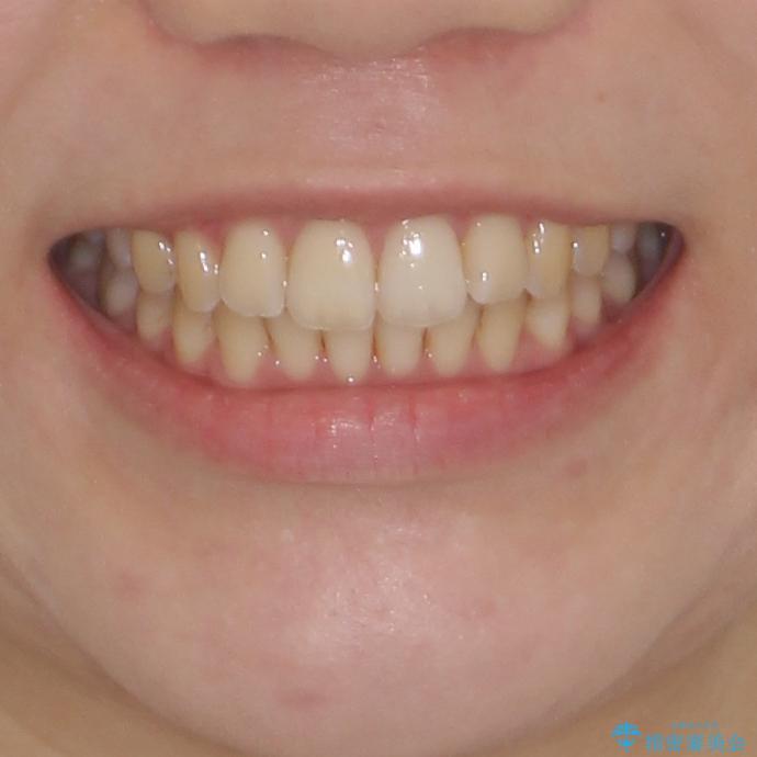 前歯のデコボコを解消 インビザラインによる矯正治療の治療後(顔貌)