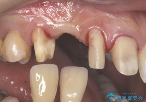 前歯の虫歯 とりあえずつけていた歯がとれたの治療中