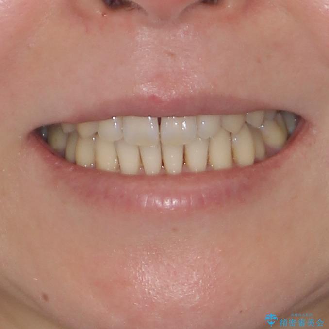 八重歯のインビザライン矯正治療の治療後(顔貌)