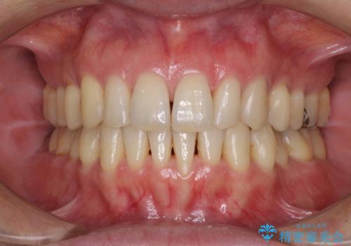 八重歯のインビザライン矯正治療の症例 治療後