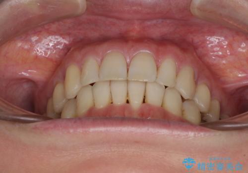 八重歯のインビザライン矯正治療の治療後