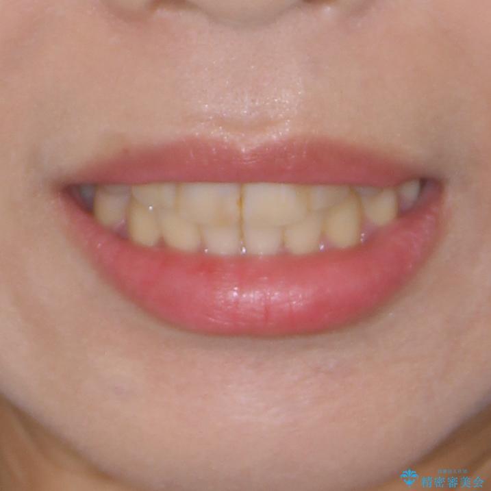 上下の八重歯を治したい インビザラインと補助装置を用いた抜歯治療の治療後(顔貌)