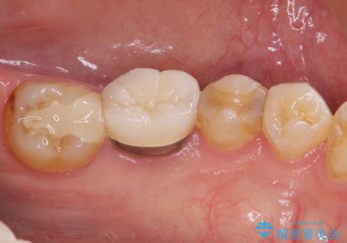 冷たいものがしみる セラミックインレーによるむし歯治療の治療前